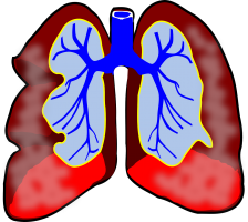 Clipart of lungs